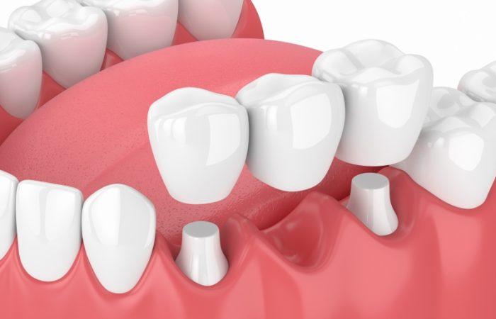 Bridges - Woodbury Park Dental