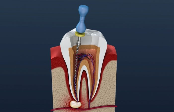 Root Canal Treatment - Woodbury Park Dental