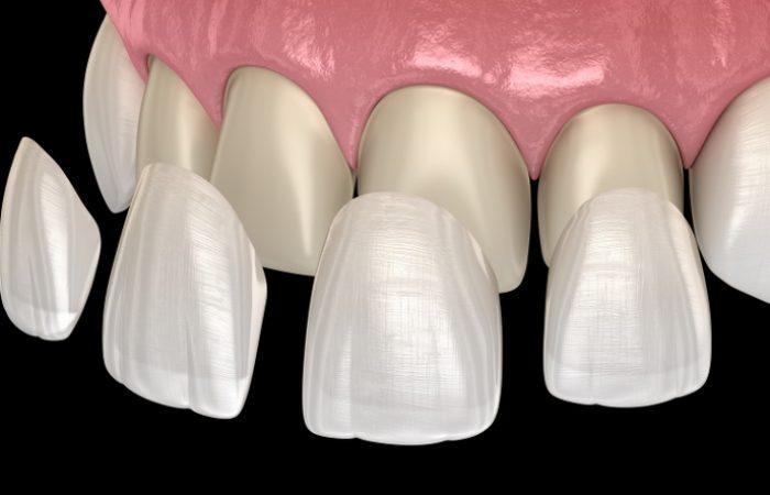 Veneers - Woodbury Park Dental