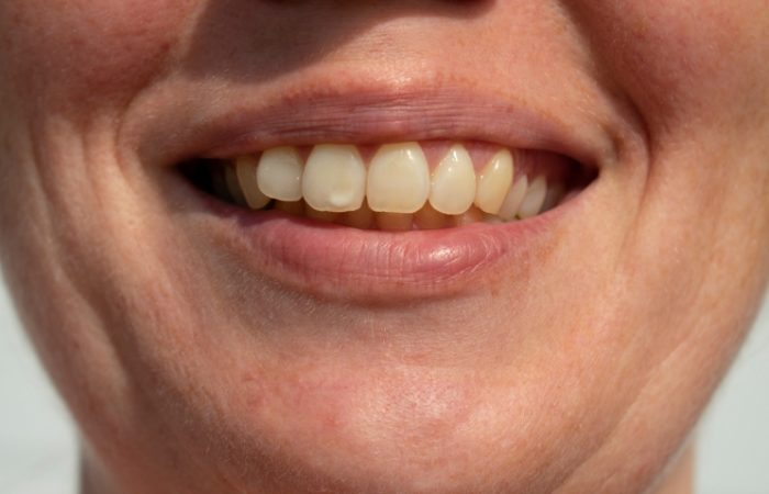 ICON Treatment for White Spots - Woodbury Park Dental