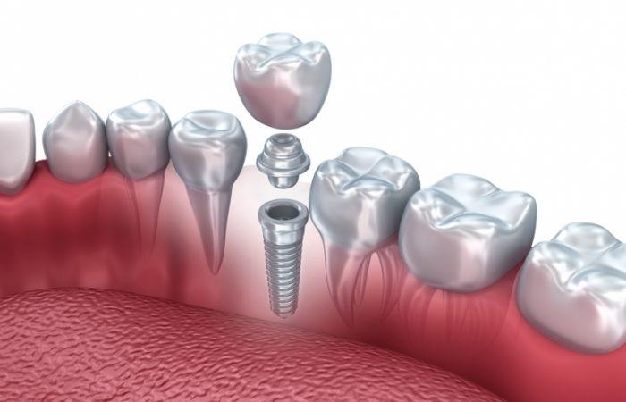 Single Tooth Dental Implant - Woodbury Park Dental