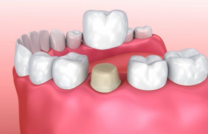 Crowns - Woodbury Park Dental