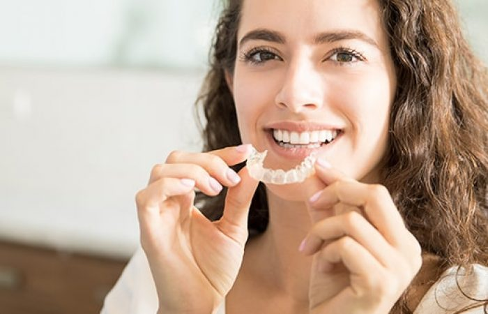 Teeth Straightening - Woodbury Park Dental